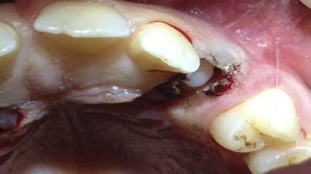 cirugía-oral3