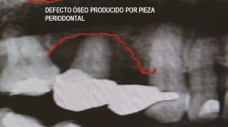 cirugía-oral5