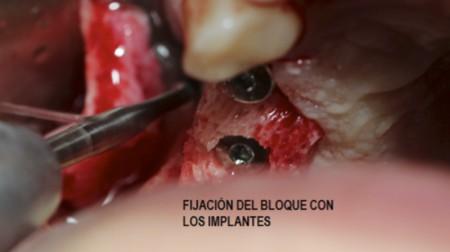 cirugía-oral7