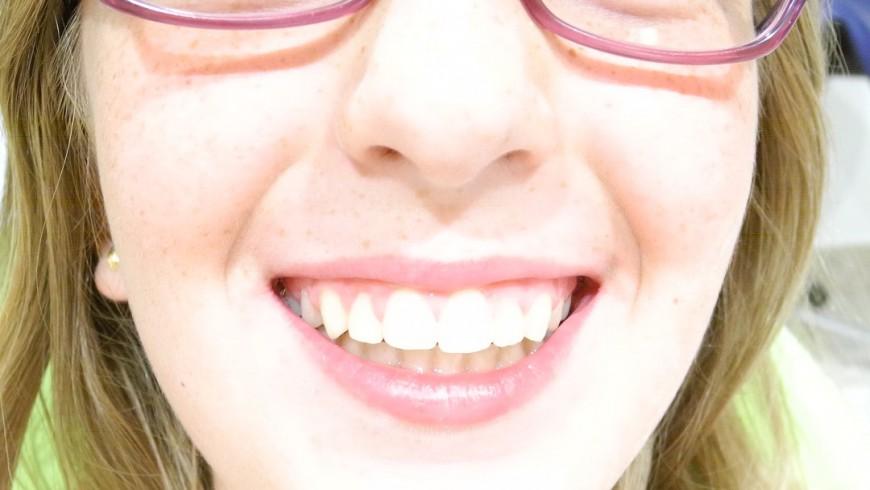 El Milagro De La Ortodoncia