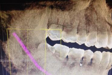 DIAGNOSTICO EN 3D
