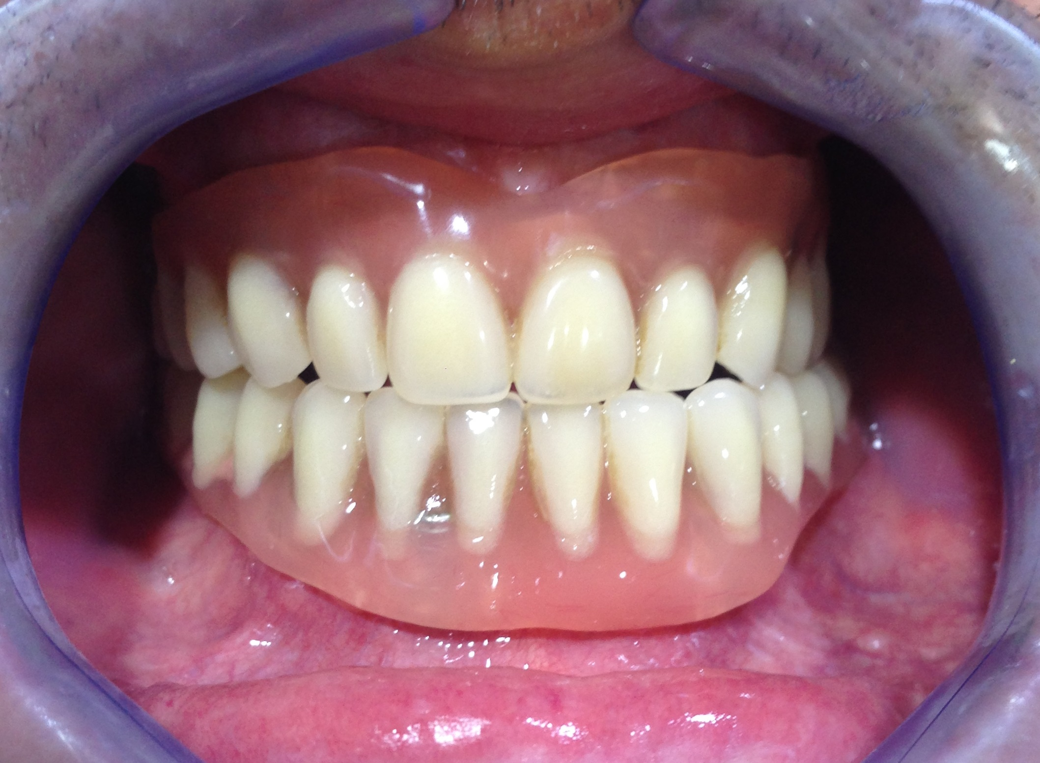 SALUD GINGIVAL…